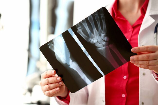 Weak and brittle bones do not have to be part of aging.