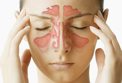 A sinus illustration overlay of a woman with sinus pain.