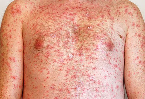 The itchy chicken pox rash begins as red bumps and spots that form into blisters full of clear fluid.