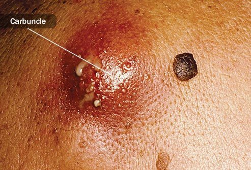 A boil fills with pus before bursting.