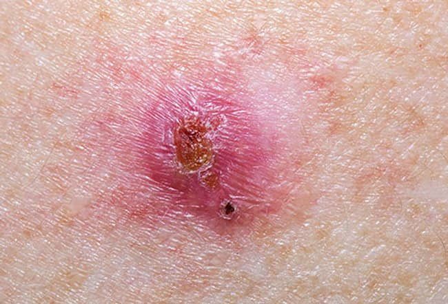 Collage of basal cell carcinoma.