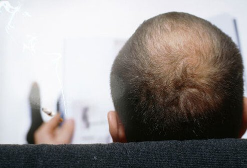 Smoking can worsen the natural process of hair thinning that occurs as we age.