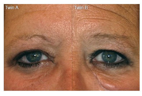 One of the characteristic signs is the looseness of the undereye skin, making her appear years older than her twin sister.