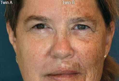 Smoking and non-smoking twins showing difference in age spots.