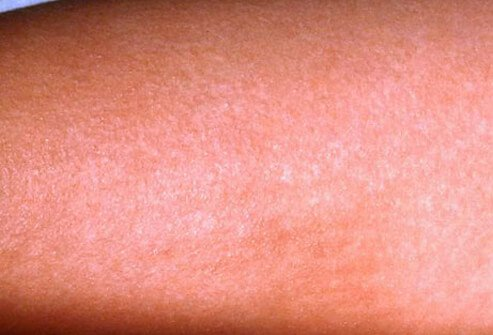 Rash on the body which may be a sign of scarlet fever.