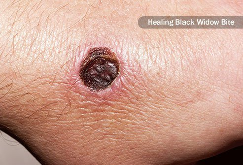 Symptoms of a serious black widow spider bite grow more severe over time.