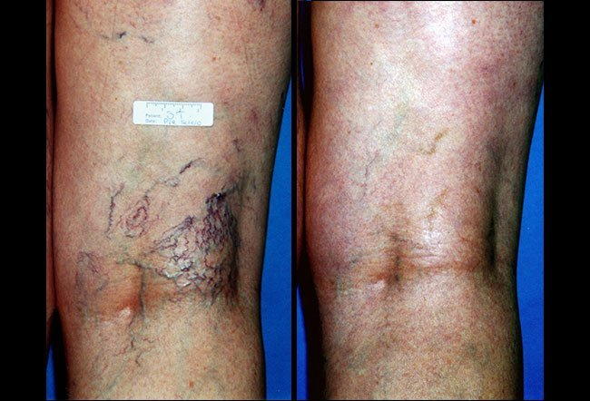 Before and after photos of spider vein sclerotherapy treatment.