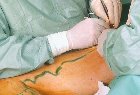 Doctors performing varicose vein surgery.