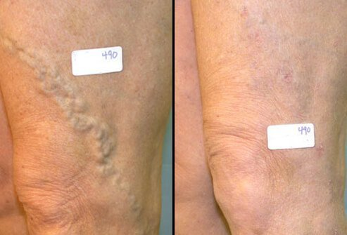 Before and after photos of varicose veins after vein surgery.