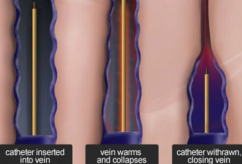 Illustration of a radiofrequency ablation to treat varicose veins.