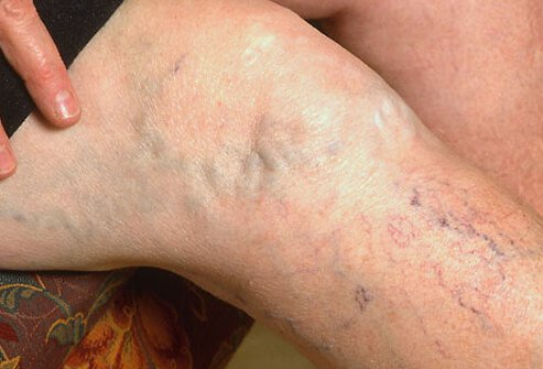 A woman's leg displaying spider and varicose veins.