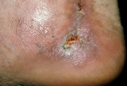 An example of a varicose ulcer on an ankle.