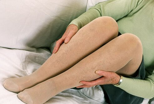 A woman wearing support hose (stockings) to treat her varicose and spider veins.