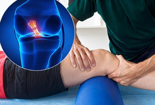 A physical therapist working on a man's knee with a callout of a torn anterior cruciate ligament (ACL).