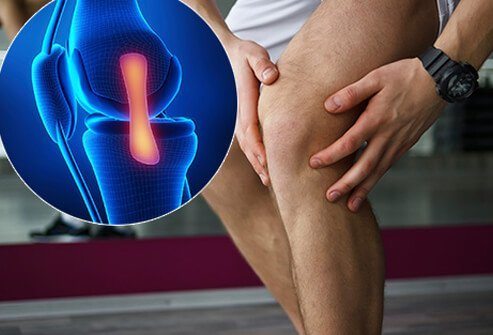 A person with knee pain and a callout of a torn medial collateral ligament (MCL).