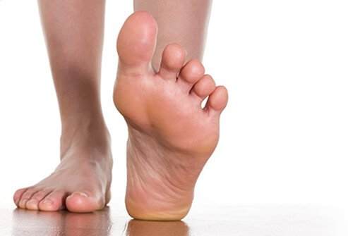 A foot back on its heel showing the plantar fascia that connects the heel to the front of the foot.