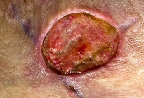 This MRSA (methicillin-resistant <i>Staphylococcus aureus</i>) infection occurred as a complication two years after cosmetic plastic surgery for a breast reduction.