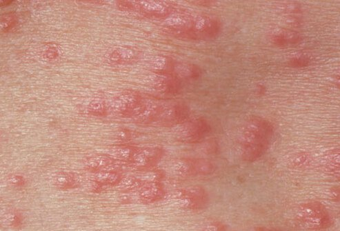 Scabies Bites Rash, Treatment, Symptoms, Contagious & Pictures