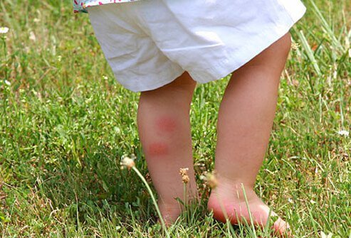 Chigger bites on back of toddler's leg