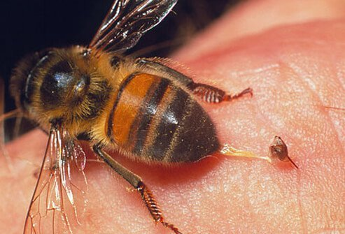 Honeybee leaving stinger embedded in skin
