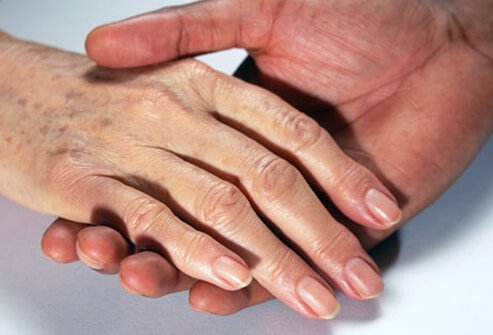 An older woman's hand shows age spots.