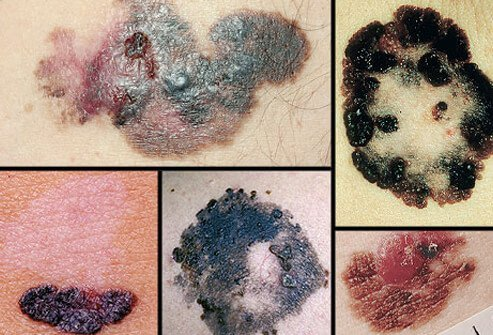 A photo collage of melanoma.
