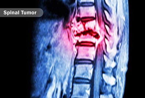 A tumor in the brain stem or spinal cord may lead to neuropathic itch.