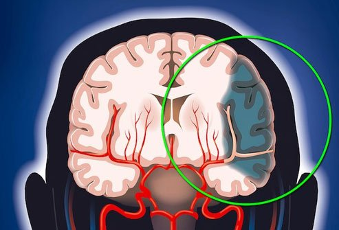 A stroke may produce itching if it affects a certain part of the brain or the trigeminal nerve.