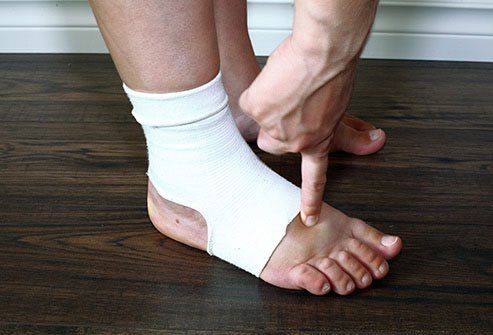 Sometimes foot swelling indicates a medical emergency.