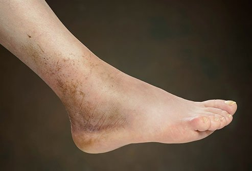 Your foot may swell after an injury.