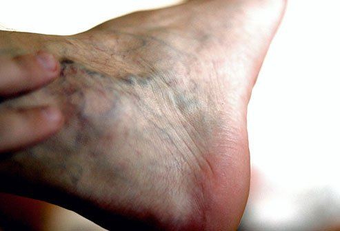 Chronic venous insufficiency causes swelling in the legs and feet.