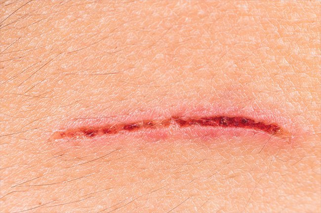 Slow healing wounds may be a sign of immune system dysfunction.
