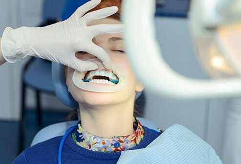 A woman gets her teeth whitened at the dentist's office.