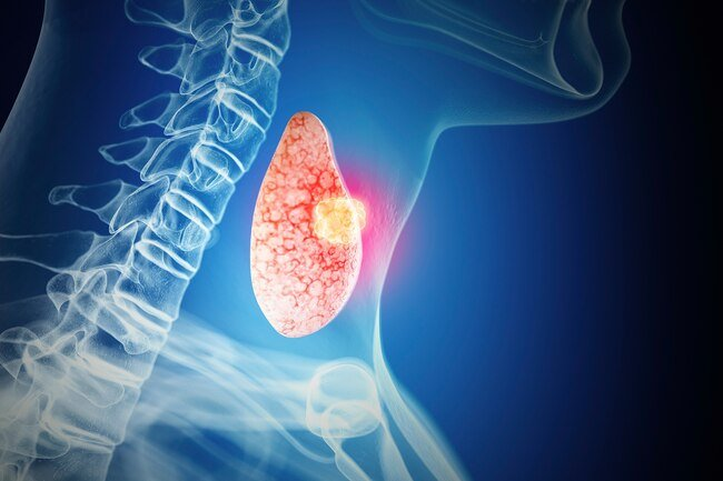 """The first sign is often a small bump, or """"nodule,"""" on your thyroid gland."""