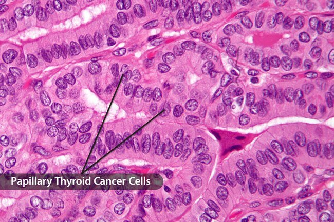 One differentiated type, papillary, usually grows in one of the two lobes of your thyroid.