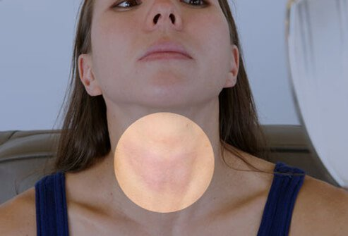 Woman checking thyroid.