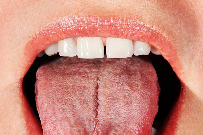 Dry mouth and Sjögren's syndrome may cause dry mouth.