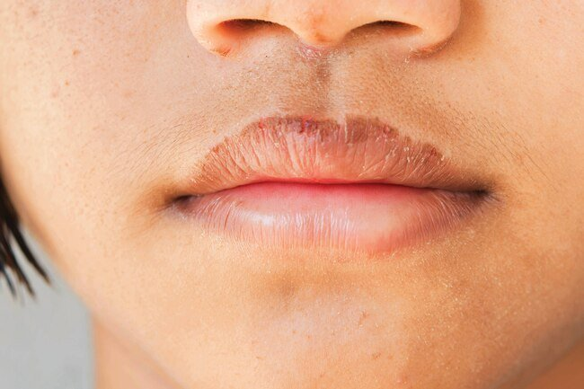 Cold weather, cosmetics, medications, and dehydration may all contribute to chapped lips.