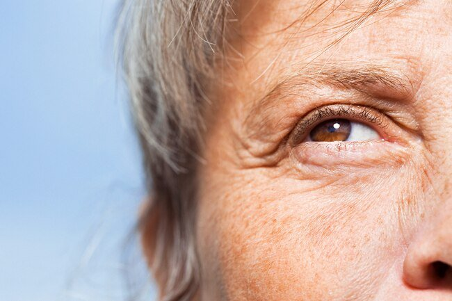 Dry eyes are more common with age because tear glands might not work as well as they used to.