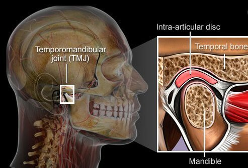 A problem with the jaw called temporomandibular joint syndrome can cause  severe pain in the jaw, face, ear, or neck.