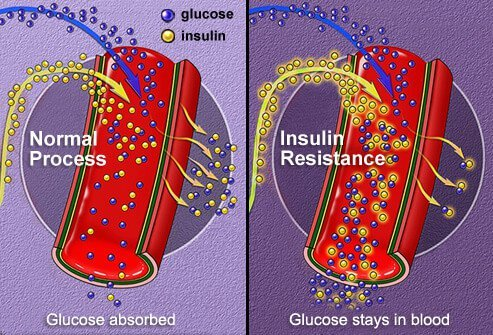 Illustration of insulin absorption.