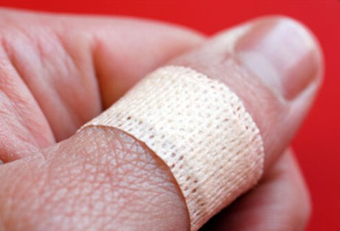Photo of bandaid on a thumb.