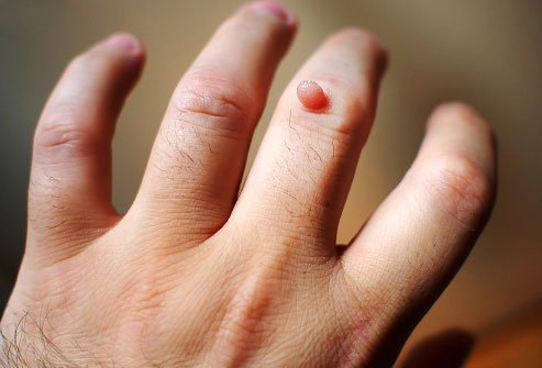 Common warts often appear on fingers and the backs of hands.