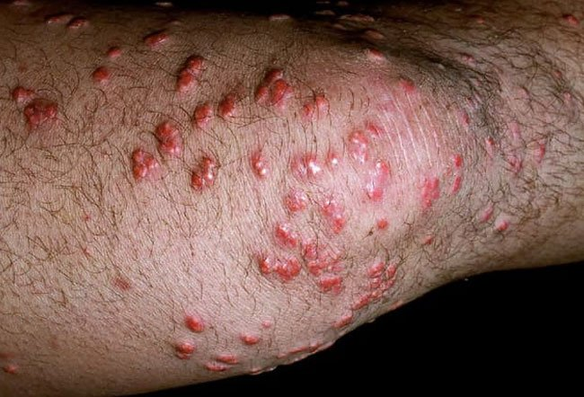 Eruptive xanthomas are waxy bumps that appear on the skin.