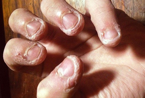 Chewing on your skin to the point of injury is called dermatophagia.