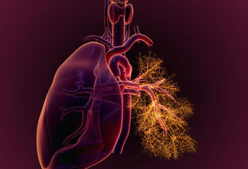 Inflammation of the tissue around the lungs is called pleuritis.