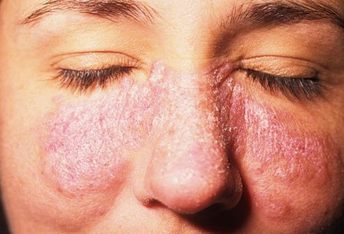 A classic lupus rash involves the cheeks and over the bridge of the nose.