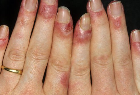 Lupus rash can cause a ruddy discoloration of the backs of the hands and fingers.