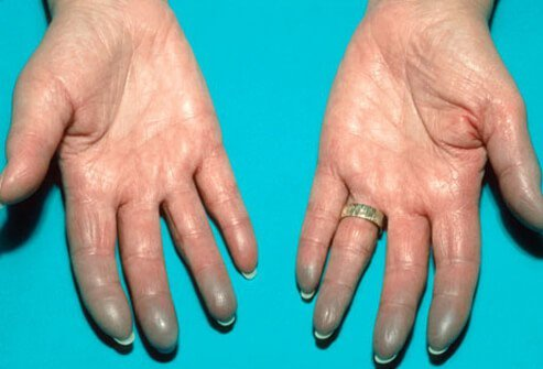 Photo of Lupus on hands.