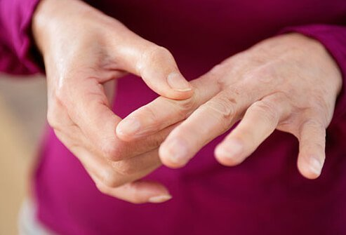 Initially, lupus that affects the joints can mimic rheumatoid arthritis.
